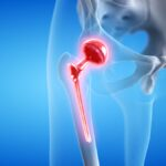 3d rendered medically accurate illustration of a painful hip replacement